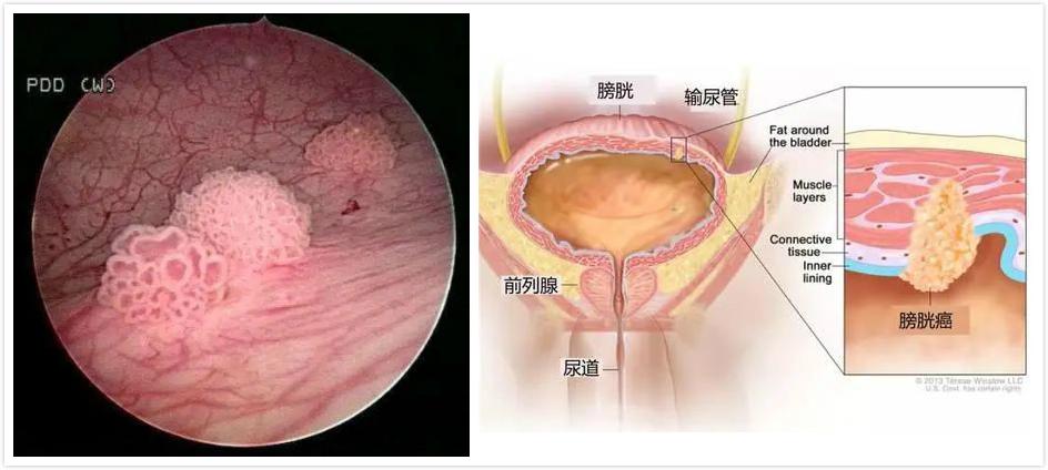 症状 膀胱 癌